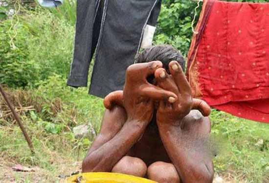 پسری با انگشت های بسیار بزرگ و عجیب (عکس)