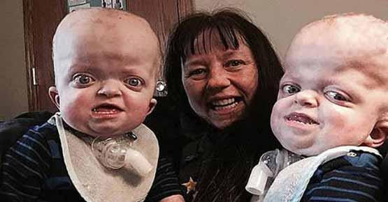 عاقبت غم انگیز این نوزادان دوقلوی بیمار (عکس)