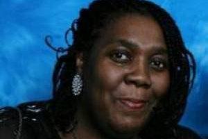 سفید شدن پوست این زن سیاه پوست بر اثر بیماری (عکس)