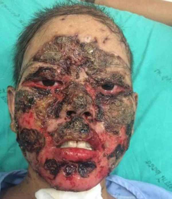 دختری که بخاطر مصرف دارو شبیه زامبی ها شد (عکس 18+)
