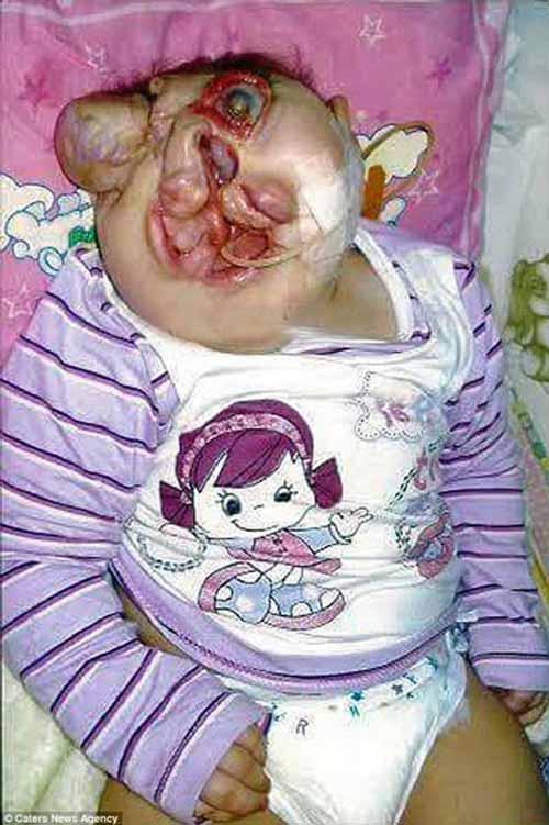 بیماری بسیار ترسناک این دختر (عکس)