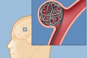 راه های مهم برای جلوگیری از انعقاد خون