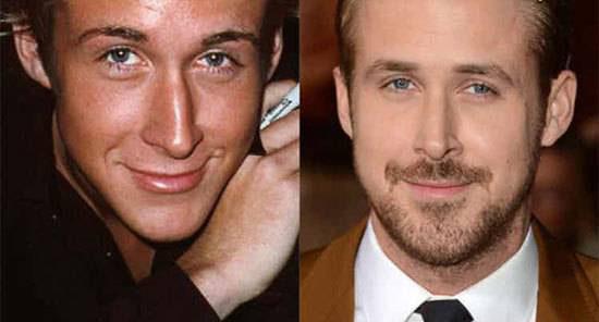 مردان جذاب هالیوودی با عمل های زیباییشان (عکس)