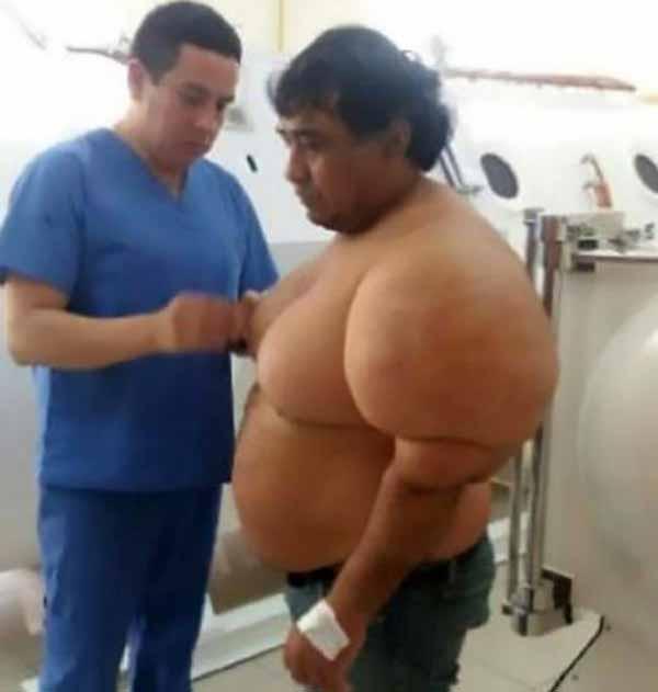 بیماری بسیار عجیب این مرد غواص (عکس)