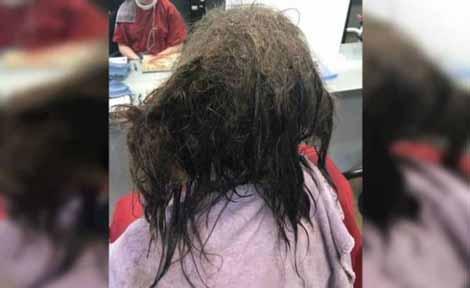 دختری با موهای بسیار زشت و پر شپش (عکس)