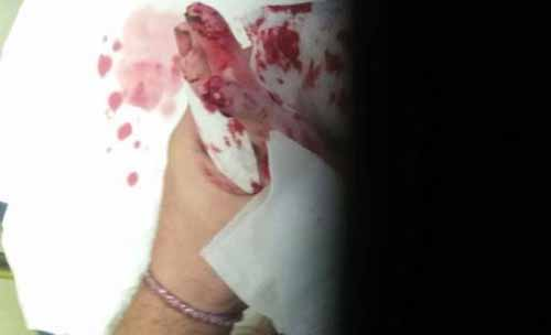 موش ها بدن این دختر بینوا را تکه تکه کردند (عکس)