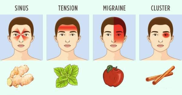 هر مدل از سر دردها به ما چه می گوید
