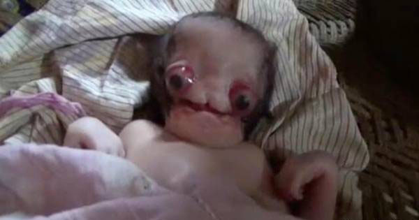 بدنیا آمدن ترسناک ترین نوزاد دنیا (عکس)