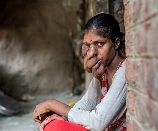 چهره بسیار عجیب این دختر او را خانه نشین کرده (عکس)
