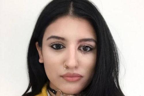 چهره زیبای دختر مدلینگ بعد از بهبودی از اسیدپاشی