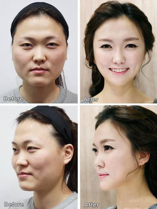 جراحی زیبایی این سه دختر برایشان دردسر شد (عکس)