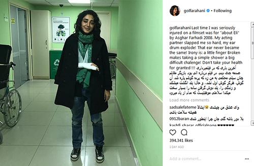 دست گلشیفته فراهانی در حین فیلمبرداری شکست (عکس)