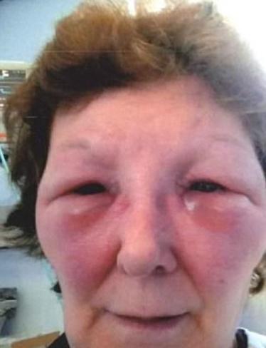 چهره باورنکردنی این زن بعد از تزریق بوتاکس (عکس)