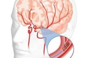 روش نجات فوری بیمار سکته مغزی با یک سوزن