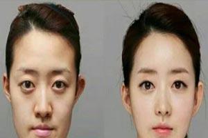 عمل زیبایی کادوی فارغ التحصیلی عجیب کره ای ها برای فرزندانشان