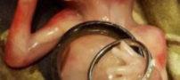 ماجرای دردناک سقط جنین 14 هفته ای (عکس18+)