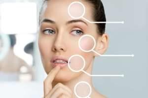 مراقبت از پوست در هوای آلوده