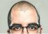 هشدارهای کچل شدن و سفیدی مو در سن جوانی
