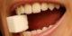 عوارض زیاد خوردن قند برای دندان
