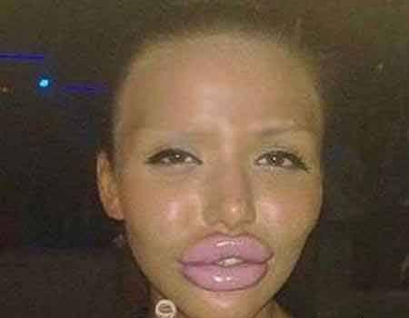 این دختر زیبا قربانی عمل جراحی شد (عکس)