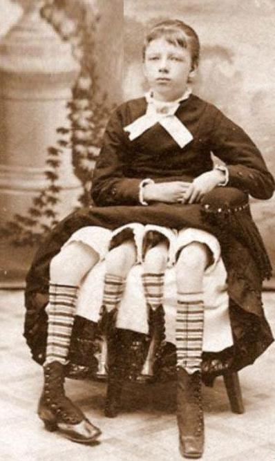 زندگی شخصی زنی با چهار دست و پا (عکس)