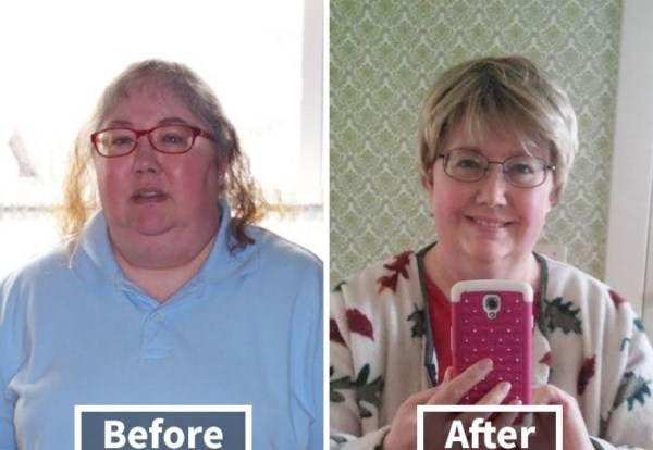 کاهش وزن و تغییرات عجیب آن رو چهره (عکس)