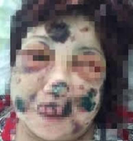 خوردن صورت این زن توسط مرد آدمخوار (عکس 18+)