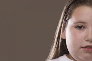 راه هایی کارآمد برای چاق شدن صورت
