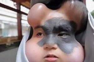 خال مادر زاد این دختر برای فاجعه درست کرد (عکس)