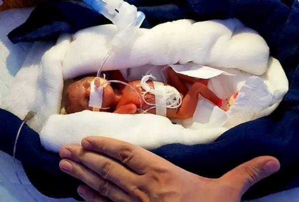 بدنیا امدن کوچکترین و بامزه ترین نوزاد دنیا (عکس)