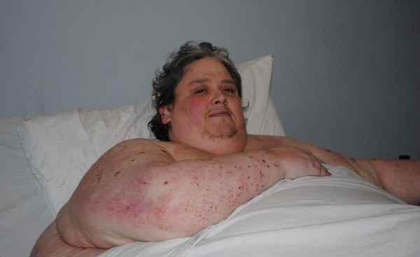 عکس های چاق ترین مرد دنیا و علت مرگش