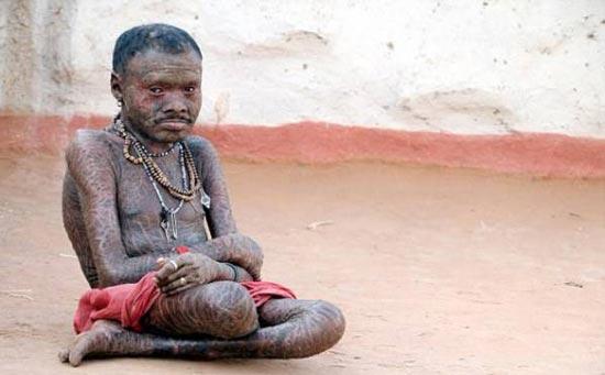 بیماری عجیب و وحشتناک این مرد آفریقایی (عکس)
