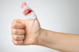 زخم خود را اینگونه ببندید تا خونش بند بیاید
