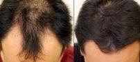 رویش مجدد موهای از دست رفته کاملا امکان پذیر است
