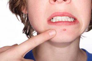 توصیه هایی برای درمان آکنه توسط کندال جنر ستاره هالیوود