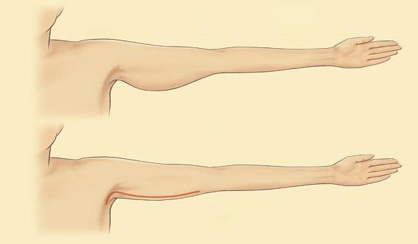 سریعترین روش رفع چاقی و افتادگی بازو