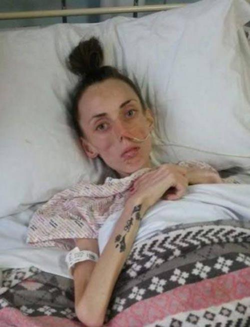 رژیم لاغری کشنده این دختر زیبا و جوان (عکس)