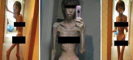 شکنجه های بی رحمانه و کاهش وزن شدید این دختر (عکس)
