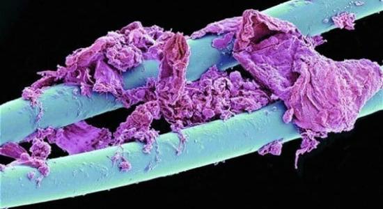 عکس هایی از دنیای زیر میکروسکوپ