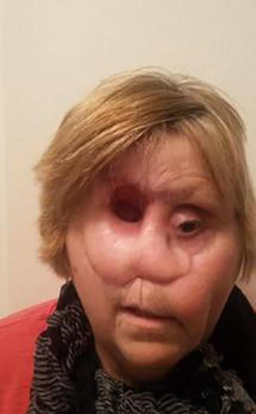 این زن به جای بینی با چشمش نفس میکشد ! (عکس)