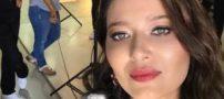 پشیمانی بازیگر زن مشهور از تزریق بوتاکس (عکس)