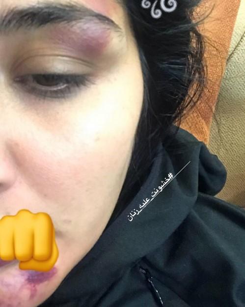 ضرب و شتم شدید بازیگر زن ایرانی در خیابان توسط یک مرد (عکس)