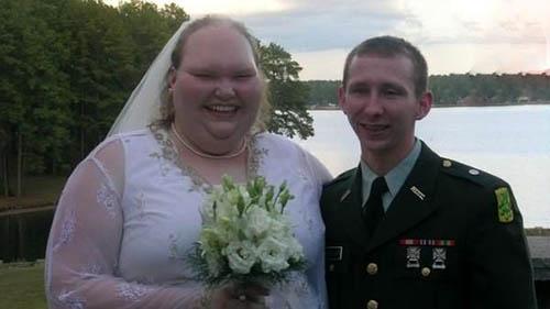زشت ترین عروس دنیا تبدیل به زنی جذاب شد (عکس )