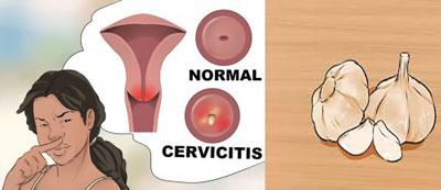 روش استفاده از سیر در واژن زنان برای درمان عفونت
