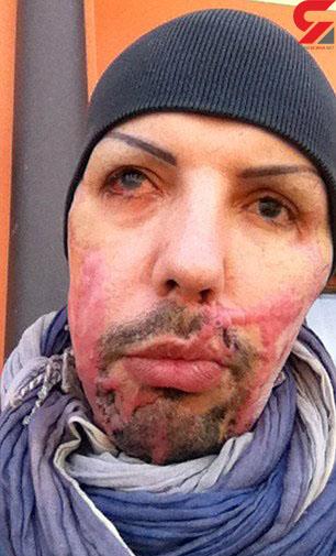 اسید پاشی دختر حسود به نامزدش بخاطر عمل زیبایی (عکس)