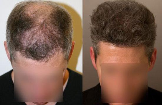کاشت مو، تحولی عظیم در حوزه بهداشت و درمان