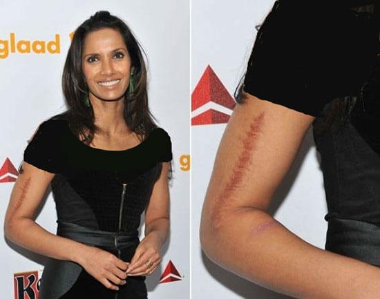 ستاره های هالیوودی با زخم های روی بدنشان (عکس)