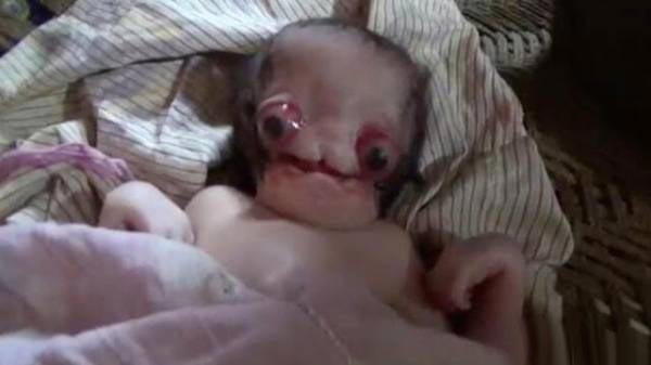 ترسناک ترین نوزاد عجیب الخلقه جهان متولد شد 18+ (عکس)