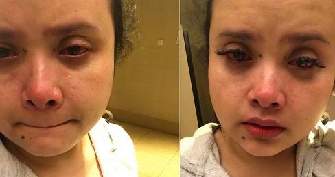 اتفاق وحشتناک برای دختر زیبا بعد از کاشت مژه (عکس)