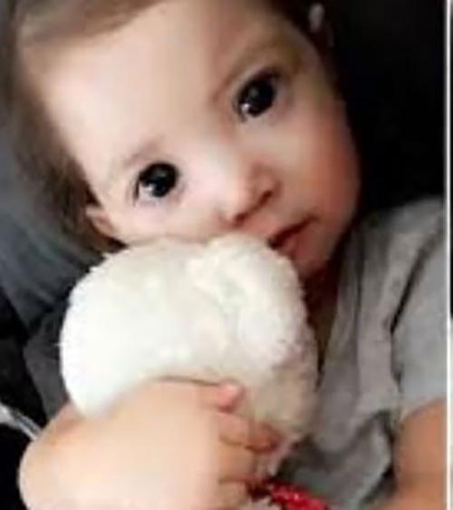 بیماری عجیبی که چشمان این دختر بچه را زیبا کرد (عکس)